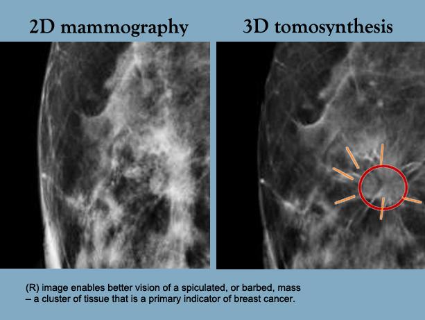 Supplemental 3 D Mammograms Show Value For Dense Breasts Newsroom