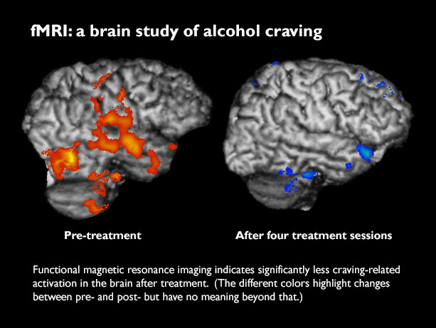 How Autism Changes Brain Scans Of >> Brain Scans Confirm Less Alcohol Craving After Treatment Newsroom