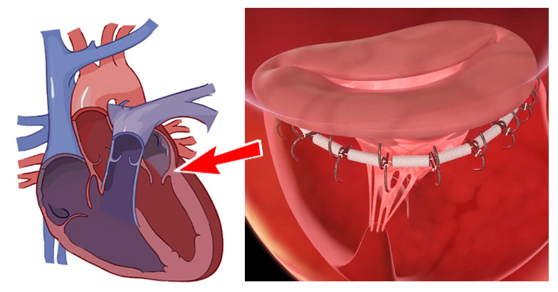 illustration of mitral valve device in clinical trial