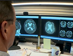 Williams looks over scans of an adult patient with hydrocephalus.