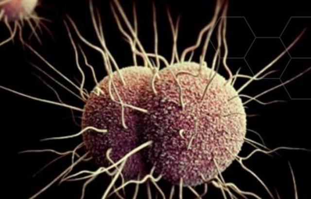Neisseria gonorrhoeae,