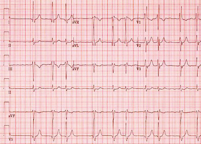 electrocardiogram display of heartbeat with atrial fibrillation
