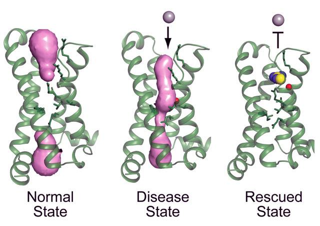 ion channel mutation in periodic paralysis