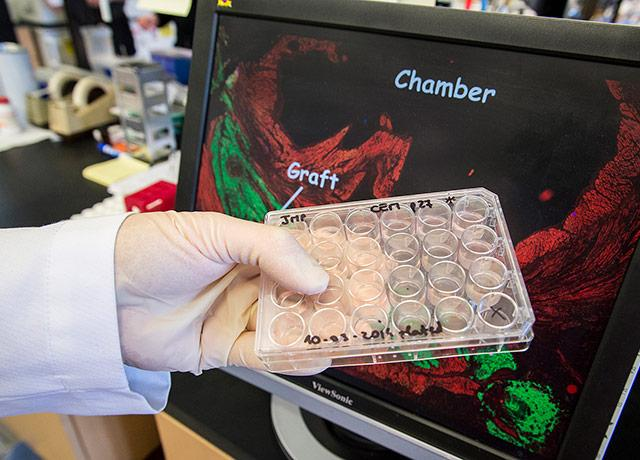 UW Medicine scientist Charles Murry holds a tray of cardiac tissue samples generated from stem cells.