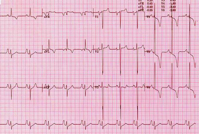 abnormal ECG readout
