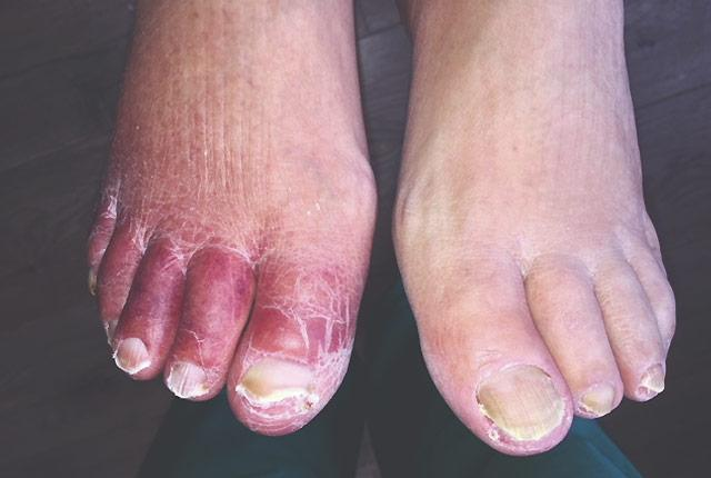 picture of feet in patient with peripheral artery disease