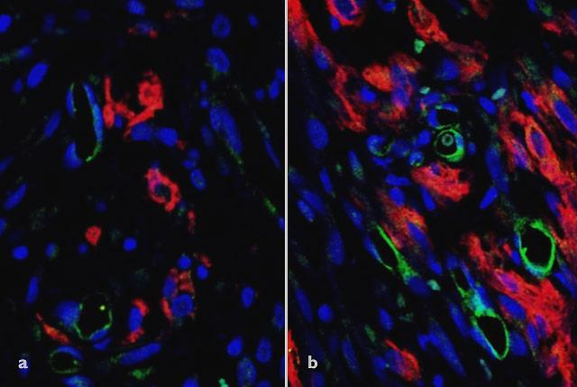 pictures of rats' heart tissue before and after implantation of vascularized tissue created in petri dish