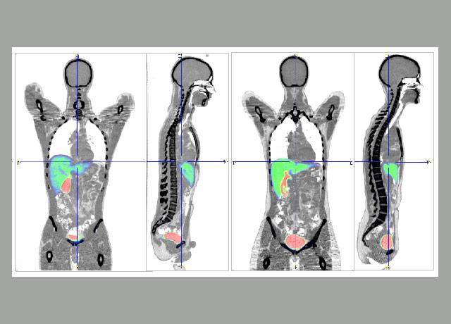 PET/CT images of subjects who took a statin drug that had been made radioactive