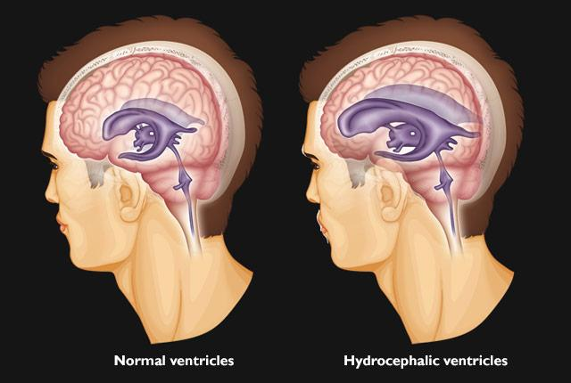 illustrations of normal brain ventricles and hydrocephalic ventricles
