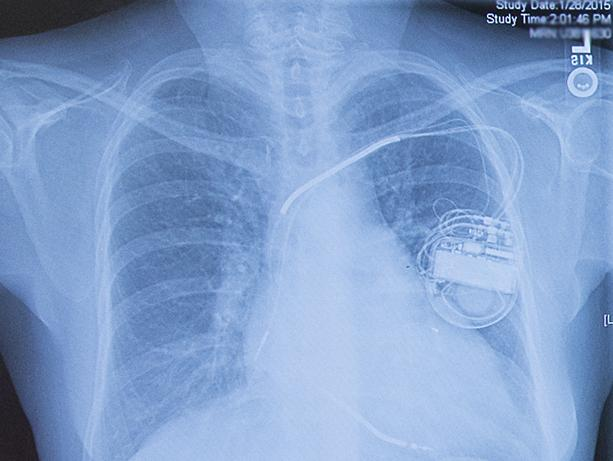 patient x-ray showing implanted cardioverter defibrillator