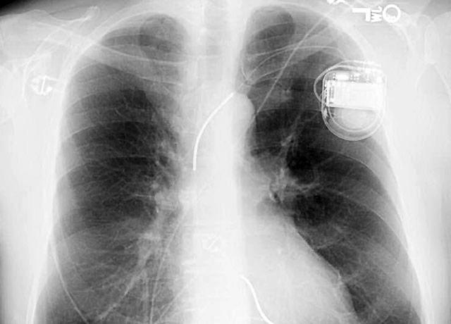 chest x-ray of a patient showing defibrillator