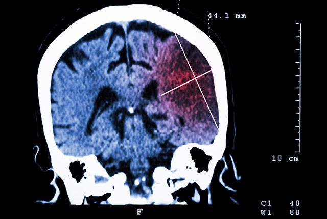CT scan of ischemic stroke