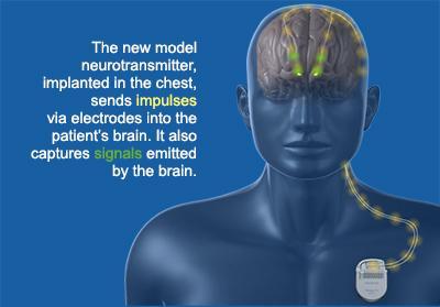 illustration of new neurostimulator