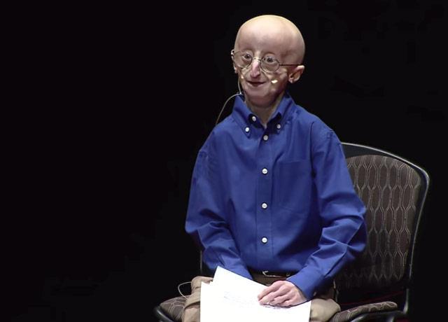 picture of progeria patient Sam Berns