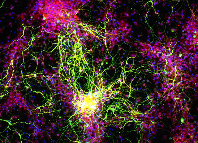 retinal ganglion grown from stem cells