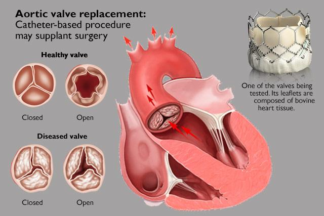 illustration of failing aortic valve