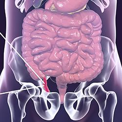 illustration of an inflamed appendix