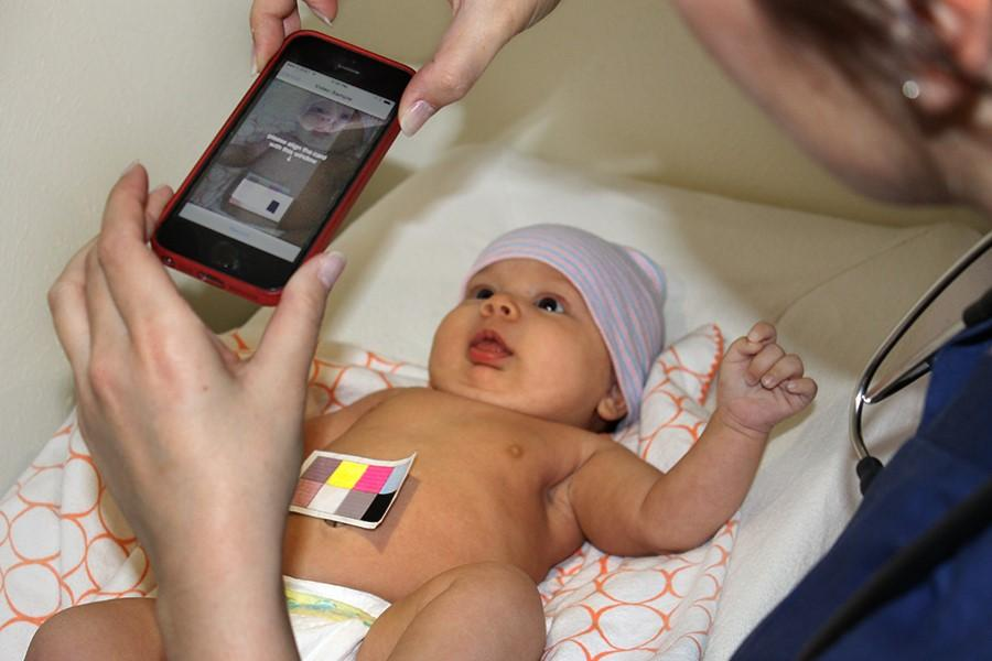 picture of baby being photographed with BiliCam software
