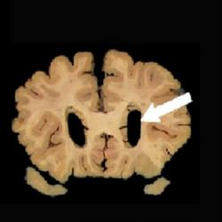 Normal brain, left. Dilation of the ventricles (arrow) in the brain on the right is a sign of atrophy that CT and MRI scans can measure.