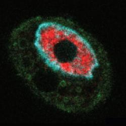 In SARS-CoV-2-infected cell (green), mRNA (red) is trapped in the nucleus. The blue represents the DNA of the nucleus.