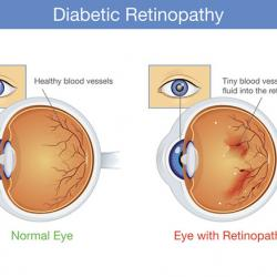 normal eye and eye with retinopathy
