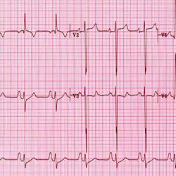 abnormal ECG readout