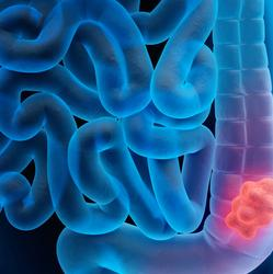 x-ray illustration of colon