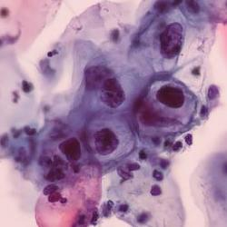 picture of abnormal cells in Pap smear slide