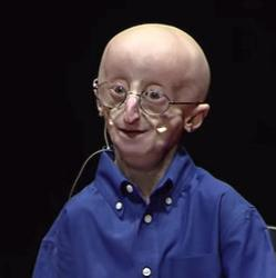 picture of progeria patient Sam Berns