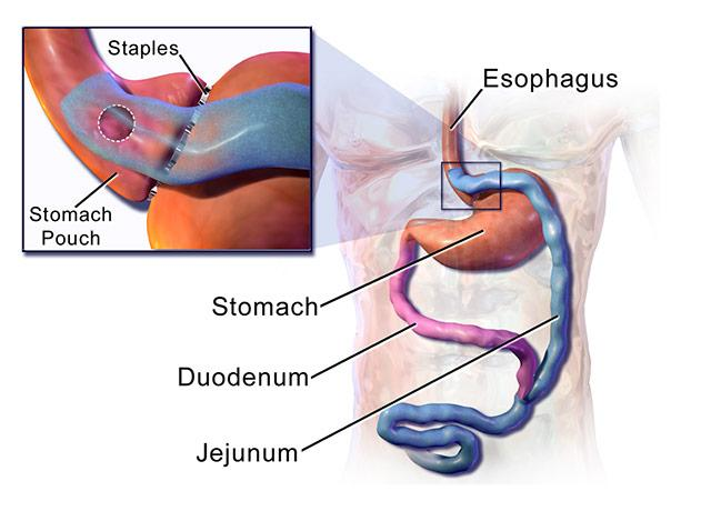 illustration of the Roux-en-Y procedure