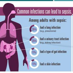 illustrated graphic of sepsis information