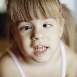 young girl looking cross-eyed