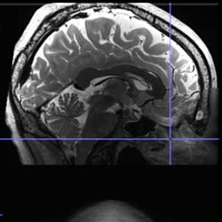 magnetic resonance imaging scans of a head