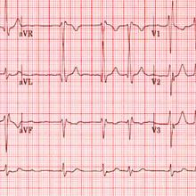 picture of an electrocardiogram of a patient with atrial fibrillation
