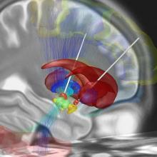 illustration of deep brain stimulation for Parkinson's