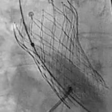 picture of fluoroscopy showing patient heart procedure of patient Debbie Davis