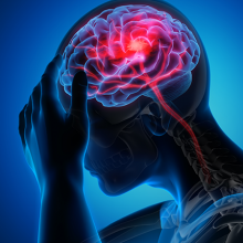 illustration of person experiencing a brain injury