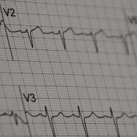Electrocardiogram reading